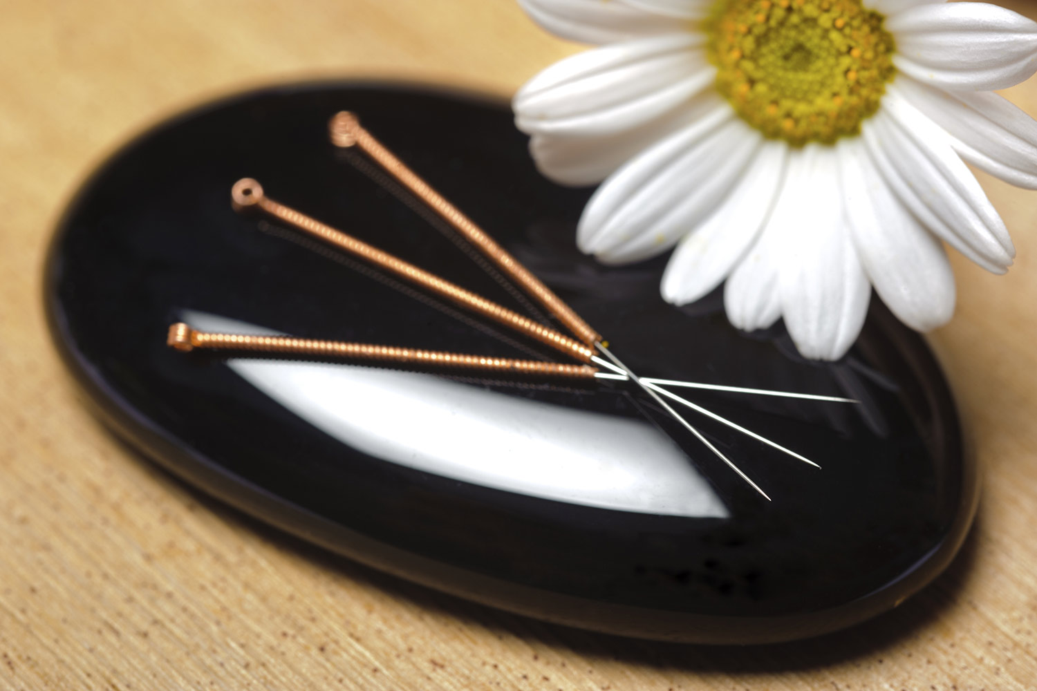 acupuncture treatment in Emsworth
