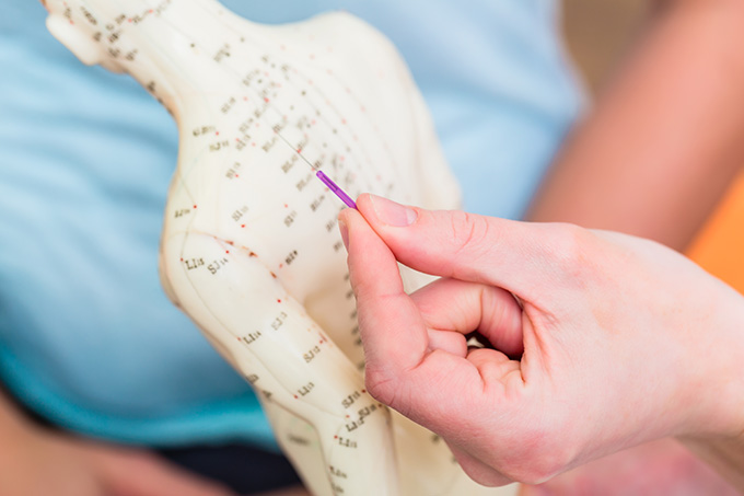acupuncture treatment in Hampshire